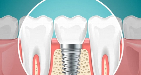 dental implant post in the jawbone