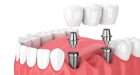 dental bridge supported by two dental implant posts