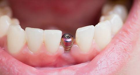 An up-close image of a dental implant post located on the lower arch between two healthy teeth