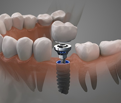 Animated smile during dental implant tooth replacement
