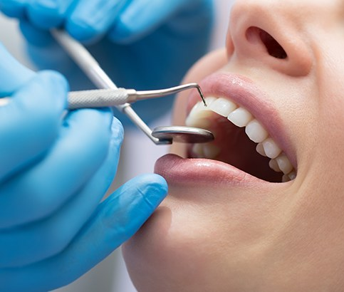 Patient receiving scaling and root planing periodontal therapy
